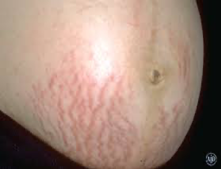 stretch marks_stomach_the lifestyle unit